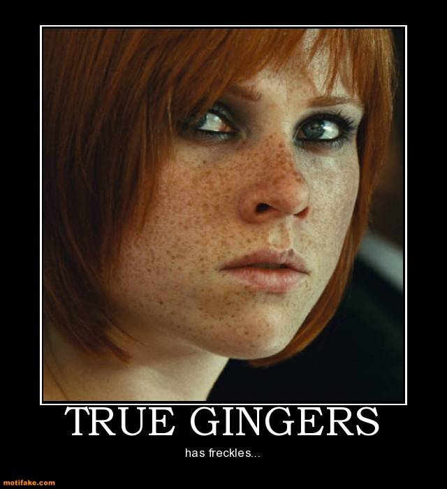 True Gingers Has Freckles Yes I Love Me Some Freckles