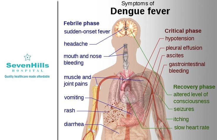 dengue fever and public health threat Dengue fever by jocelyn lowinger dengue fever is a mosquito-transmitted virus that occurs in the tropics or subtropics every year there are outbreaks of the disease in parts of north queensland.
