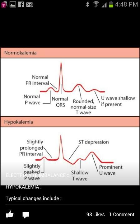 Hypokalemia | Nursing stuff | Pinterest