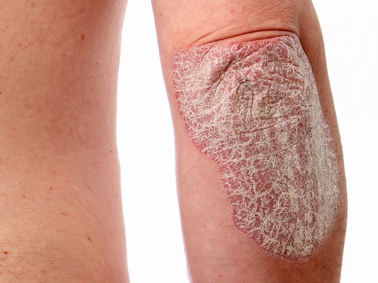 7 Makeup Tips All Women With Psoriasis Should Know