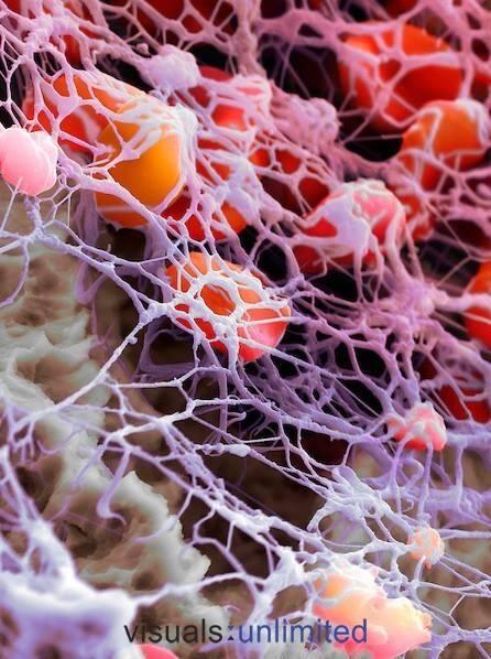 Bonita imagen de glóbulos rojos atrapados en una red de fibrina