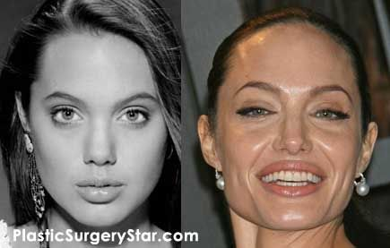 Angelina Jolie Before And After Botox