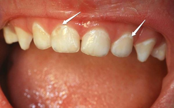 Can GERD Cause Tooth Decay