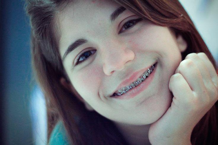 Brunette teen girls with braces