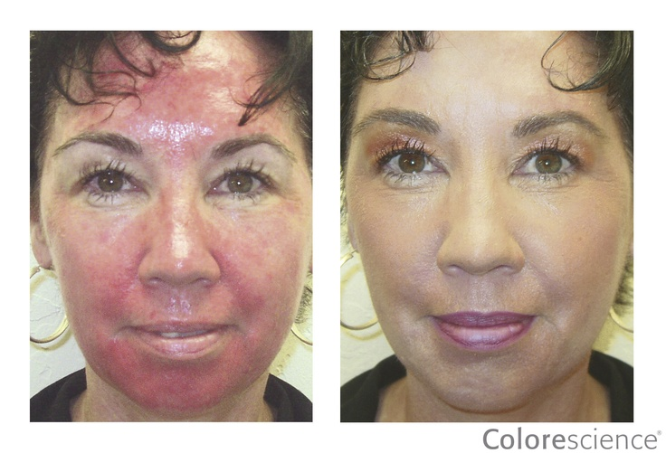 Flawless Clinic Cosmetic Pictures to Pin on Pinterest ...