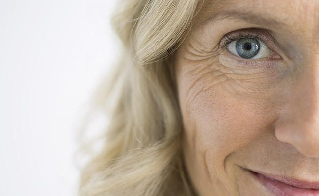 6 Natural Solutions For Crows Feet