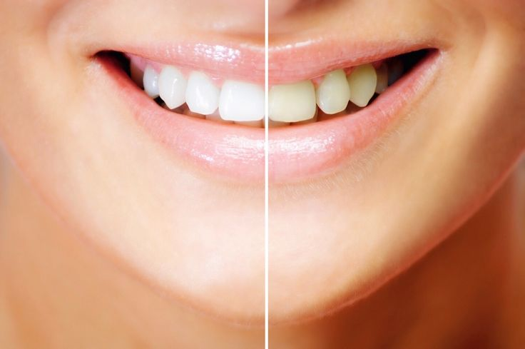 Baking soda & Lemon to whiten teeth