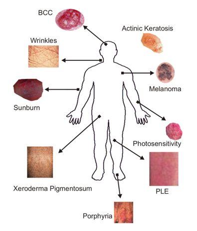 Nutritional Deficiency Diseases - Genetic Disorders Blog Articles