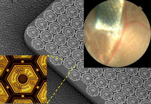 Infra Red Retinal Prosthesis Restores Sight From an Ultra Thin Package