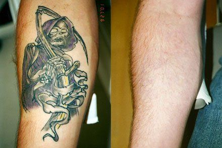 Tatto Removal on Tattoo Removal Melbourne Australia   Tattoo Removal