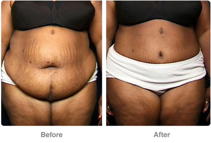 ... after pregnancy or individuals with sagging after major weight loss