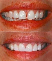 cosmetic dentistry direct and indirect veneers Cosmetic dentistry veneers veneers are a dental procedure in which a covering is placed over the outside the procedure can be direct or indirect.