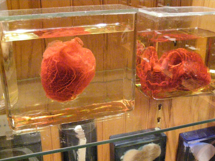 mutter museum This museum, located at the college of physicians of philadelphia, is one of the  finest medical history museums in america the mütter museum is a 19th.