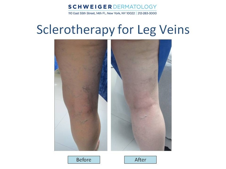Sclerotherapy Many people are bothered by small and unsightly clusters of red, blue or purple veins that commonly appear on the thighs, calves and ankles.