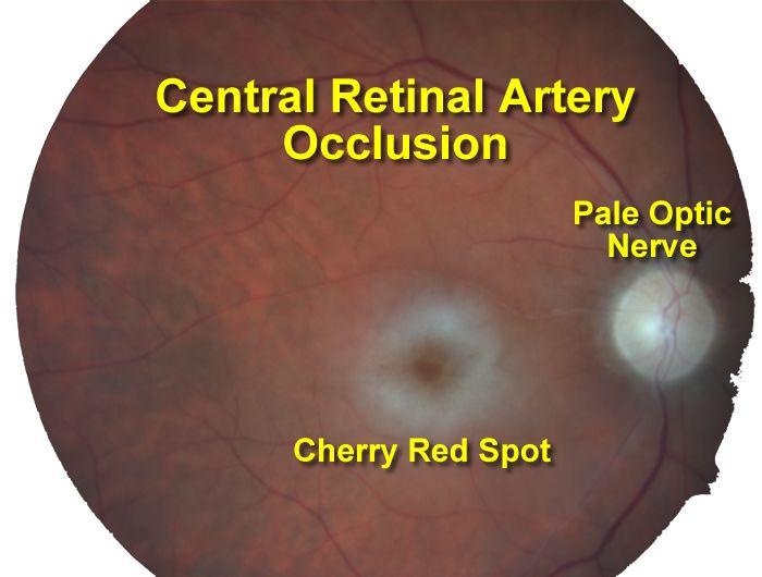 temporal arteritis treatment steroid dose