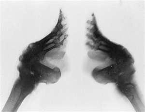 Bound Feet X-ray