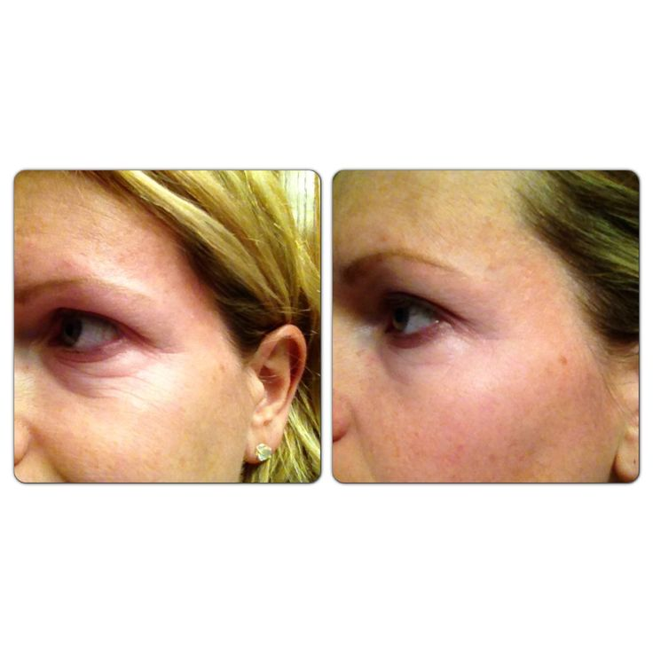 For more information about NeriumAD, or to place an order, visit www ...