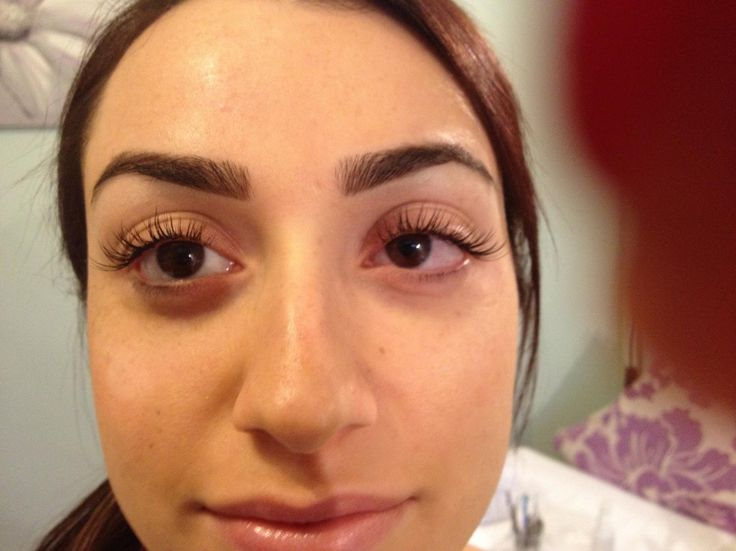 Allergic Reaction To Eyelash Extension Glue Remy Indian Hair