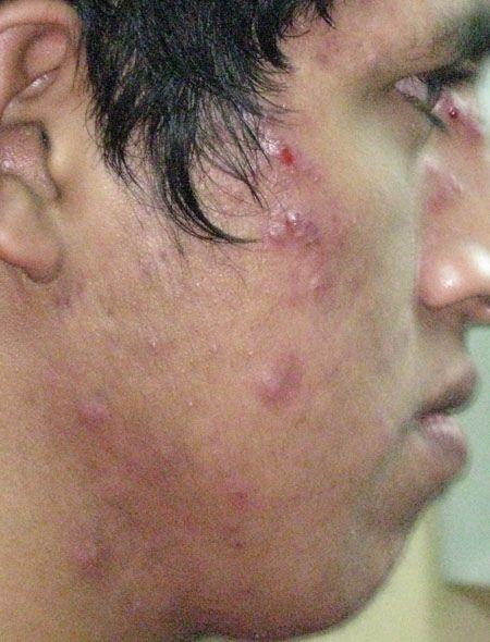 how to avoid nodules acne