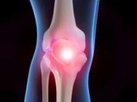 artritis y artrosis, reuma
