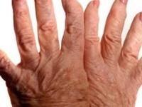 Rheumatoid Disease (R.A.)