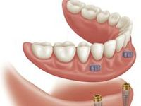 At M&J Dental Clinic, Dr. Mladen Sevaljevic is providing the best Dental services in Toronto. Also having the best dentures for you. The removable replacement for missing teeth is known as Denture. There are two types of Dentures, Partial Dentures and Complete Dentures. . Here's everything you ever wanted to know about dentures.