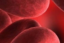 Anemia / Anemia is a condition in which your blood has a lower than normal number of red blood cells. Anemia also can occur if your red blood cells don't contain enough hemoglobin. Hemoglobin is an iron-rich protein that gives blood its red color. This protein helps red blood cells carry oxygen from the lungs to the rest of the body. The lack of oxygen-rich blood from Anemia may cause you to feel tired and have other symptoms.  Learn more about Anemia at http://www.dailyrx.com/conditions/anemia / by dailyRx