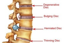 Back Pain / I have Degenerative Disc Disease, Osteoarthritis Arthritis and Foraminal Stenosis... I have had 3 back surgerys, 1st one in 2004 a fusion at L5-S1, 2nd in 2008 laser surgery. 3rd in May 2013 a fusion at -L4-L5.  My discs are deteriorating from the degerative disc disease, I also have had to get part of my spine removed because of the Foraminal Stenosis... I am in constant pain and am always looking for new information that could help.  / by Jayme Baldwin