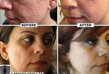Buy Nerium Direct ! / Are you wondering what Nerium AD is? Let's get straight into that. It is a simple but breakthrough anti-aging cream formulated to address:  Fine lines & wrinkles Discoloration Uneven Skin Texture Enlarged Pores Aging Or Loose Skin / by Johnny ray Whitsett