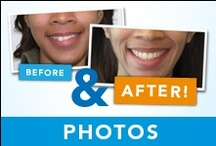 Before & After Photos / A picture is worth a thousand words. If you're curious about how effectively Invisalign can treat your case, take a look at a few success stories of previous Invisalign patients. Each of these individuals had their own unique orthodontic and dental issues that were successfully treated with Invisalign. / by Invisalign