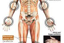Rheumatoid Arthritis / by Treni Heil Vucelich