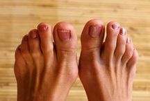 """Hammertoes / """"Hammertoe"""" is a deformity of the second, third, or fourth toes. Left untreated, #hammertoes can become inflexible & require surgery. Comprehensive Foot Centers in Kansas City provide the best surgical techniques & implants to effectively relieve painful hammertoes while providing optimal cosmetic appearance. www.CompFoot.com / by Comprehensive Foot Centers, PA"""