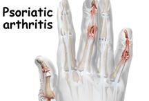 Arthritis ~my life / by Kerry Lynn Agnell Stacks