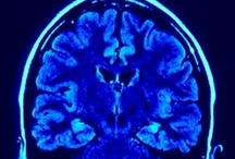 Neurology / In-Depth Knowledge of ALL Neurology! / by Caleb Lay