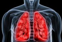Lung cancer / the reason why you need to quit smoking  / by Cancer Hallmarks