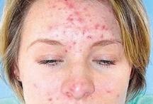 go away acne / by Sharon Shin