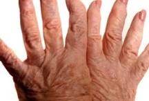 Rheumatoid Disease (R.A.) / by Julie Harnisch