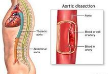 Aortic dissection / by Marie Fishwick