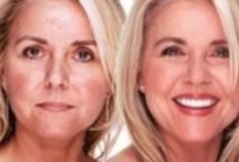 Treatments for Scars & Rosacea / Dermefface FX7™ Scar Reduction Therapy is a natural process that works with the skin's 28-day regeneration process. #scartreatment #scars #scar #rosacea #rosaceatreatment #treatmentforscars #treatmentforrosacea #skincare #scarreduction #treatmentforscarscream #rosacearelief #whatisrosacea #relieffromrosacea / by Natural Skin Care Boards