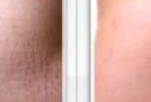 Removal of Stretch Marks / Removal of stretch marks? You'd be amazed how common they are, whether from pregnancy, growth spurts, surgery or other reasons. Skinception™ Intensive Stretch Mark Therapy reduces the appearance of stretch marks in men and women looking to boost confidence and sex appeal. #stretchmarks #getridofstretchmarks #stretchmarkstreatment #curestretchmarks #fadestretchmarks #healstrechmarks #stretchmarksreview #stretchmarkcream #medermastretchmarks #removestretchmarks / by Natural Skin Care Boards