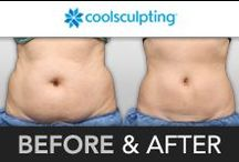 Before & After / by CoolSculpting by ZELTIQ