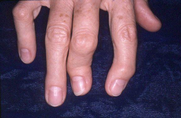 Лечение Псориаза Препаратом Асд