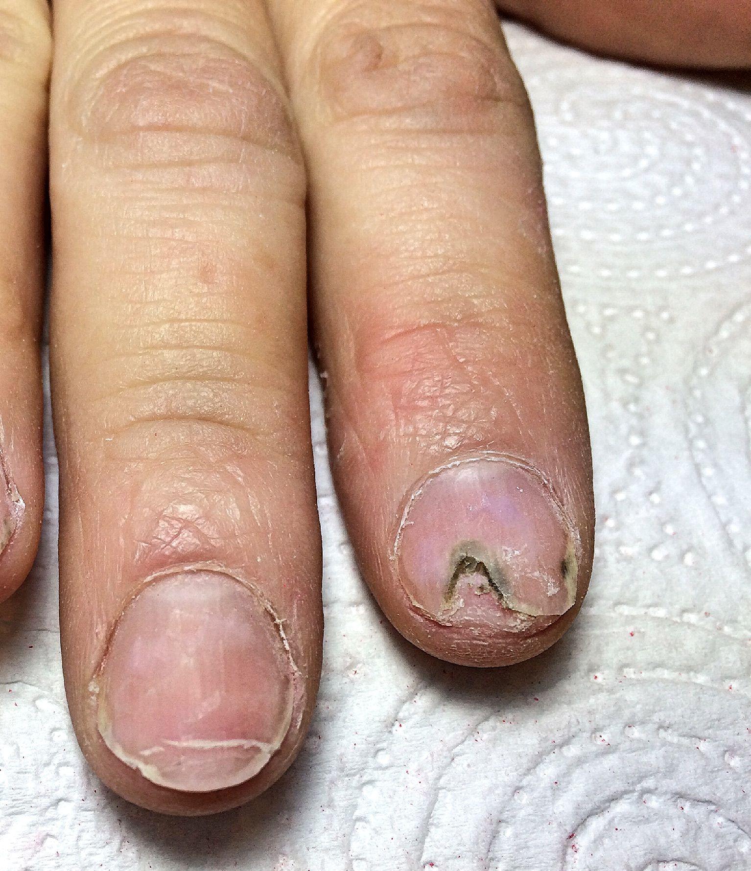 Incrinatura tra dita del piede un trattamento di fungo