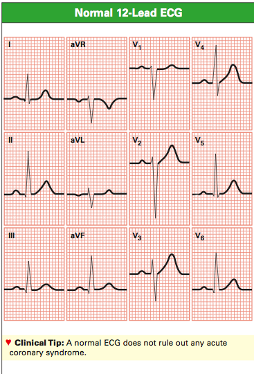 Streams ECG Wirelessly from the Patient to Your Computer