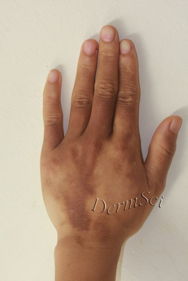 pictures of contact dermatitis #11