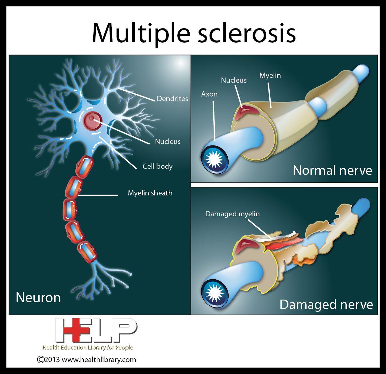 Multiple Sclerosis | Nervous System | Pinterest Multiple Sclerosis