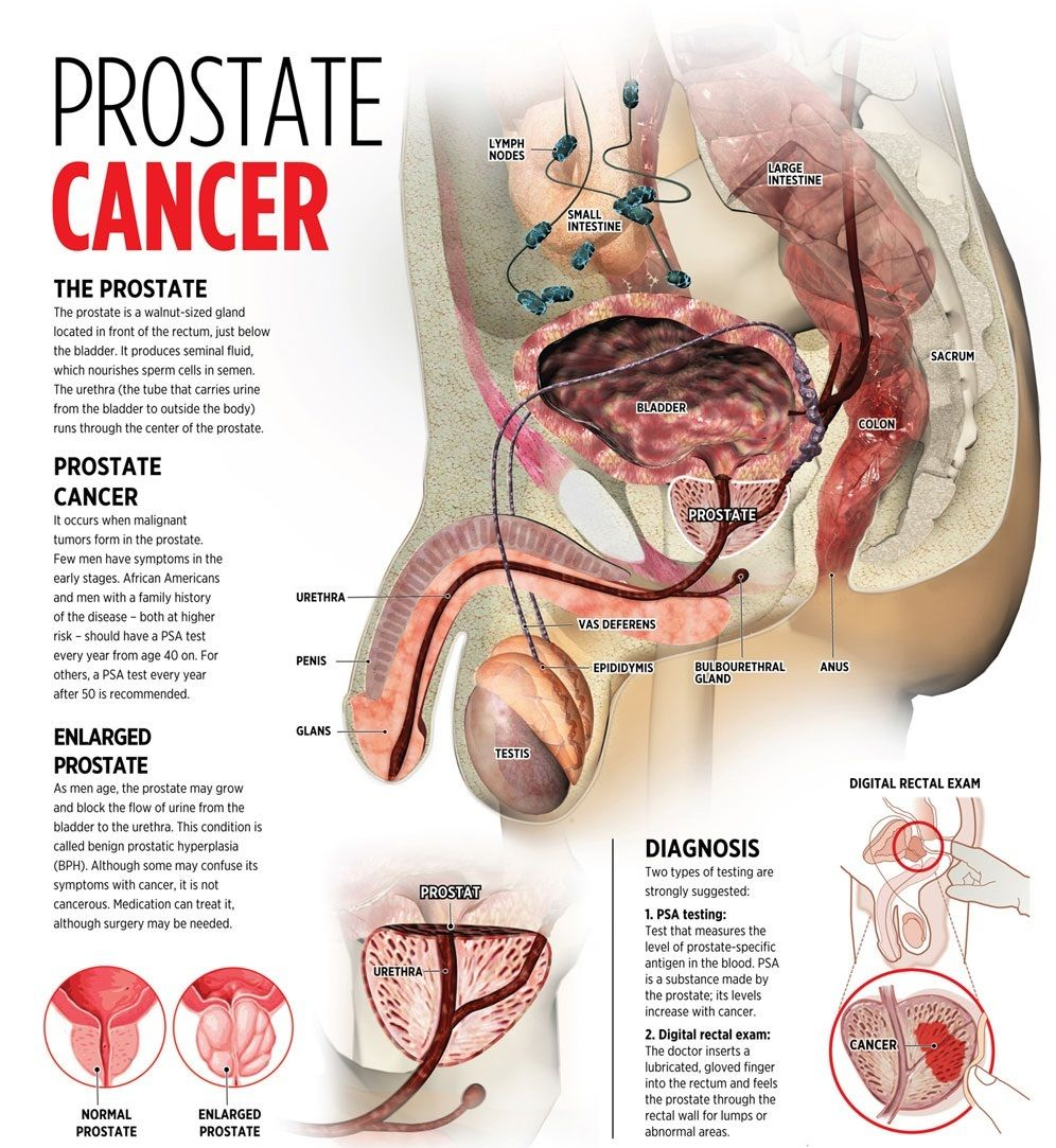 Size of the prostate