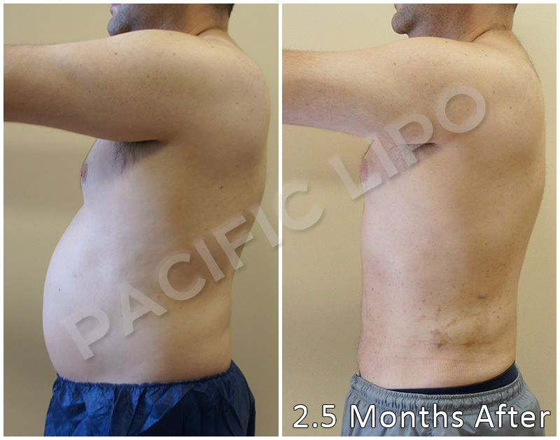 Liposuction 700cc atv