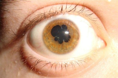 Uveitis is a form of eye inflammation. It affects the middle layer of tissue in the eye wall (uvea)