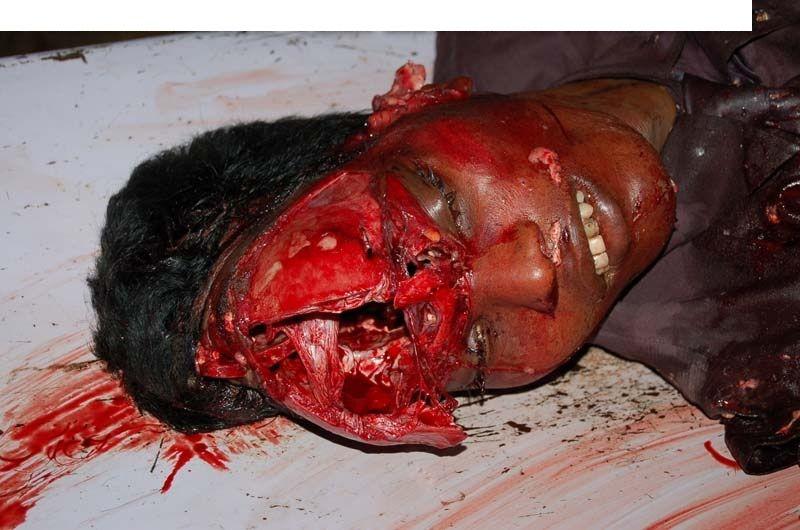 Brown autopsy simpson photos - nicole